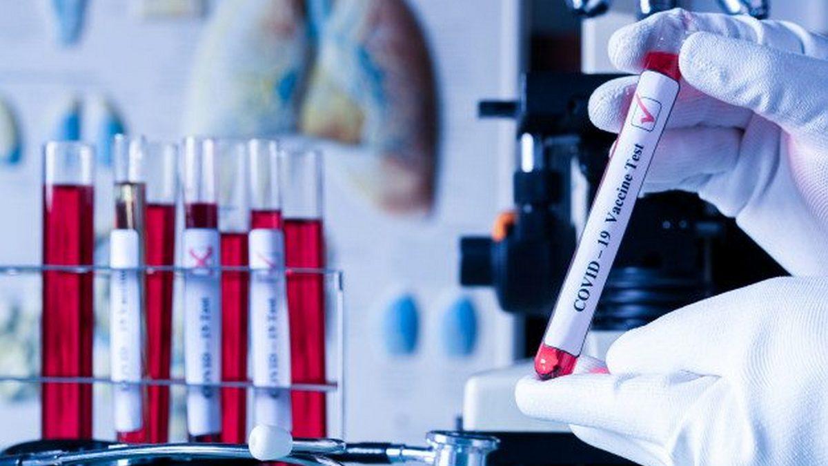 Новые случаи заражения COVID-19 зарегистрированы в Никополе , фото-1